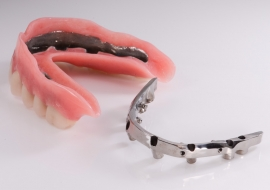 Implants_K-bar_and_overdenture