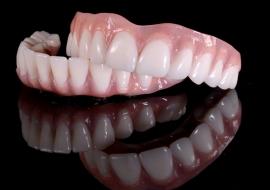 Implants_L-Upper_lower_hybrid