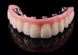 Implants_M-cad_cam_frame_emax_crowns
