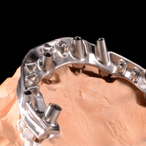 CAD/CAM Overdenture Bars and Frameworks