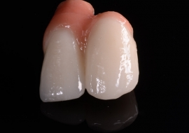 Porcelain Fused to Metal with Pink Gingival