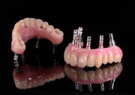 Implants_CC-cad_cam_hybrid_prosthesis