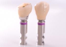 Implants_J-Implant_crowns