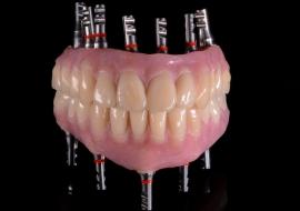 Implants_C-cad_cam_hybrid_prosthesis