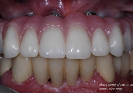 Implants_F-cad_cam_hybrid_prosthesis
