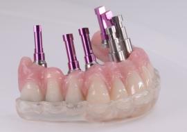 Implants_H-cad_cam_hybrid_prosthesis