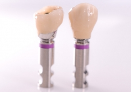 Implants_J-Implant_crowns