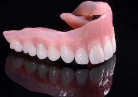 Implants_O-overdenture